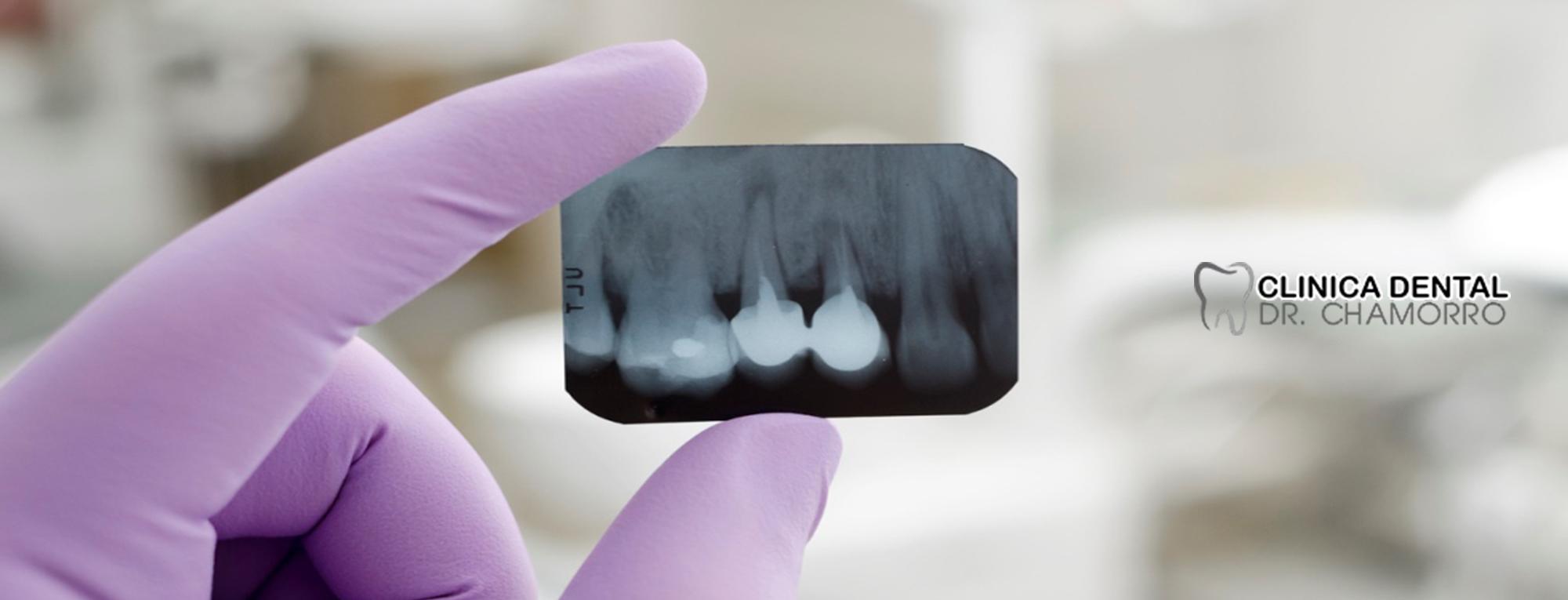 Rdiografia oral